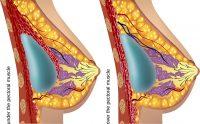 sezione protesi mammaria mastoplastica additiva