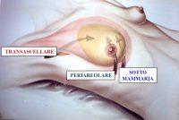 incisione mammella mastoplastica additiva