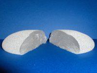 protesi mammaria tagliata