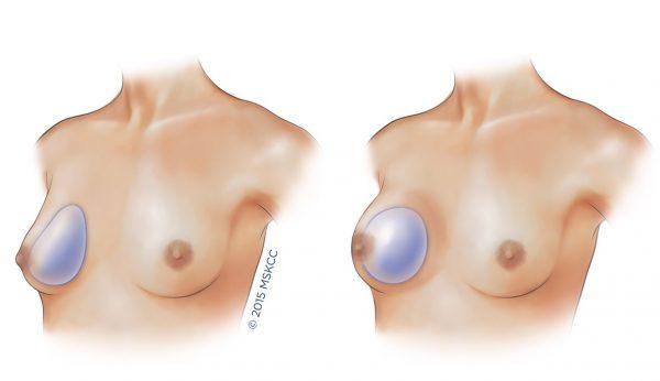 protesi anatomica e rotonda