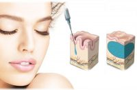 effetto acido ialuronico sul volto