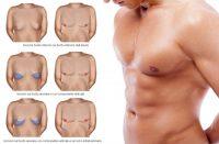 ginecomastia chirurghi anfosso grassi