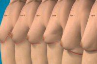 ginecomastia maschile