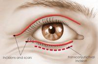 incisioni blefaroplastica