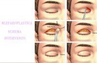 intervento blefaroplastica
