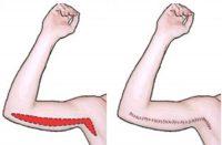 lifting braccia dottori anfosso e grassi