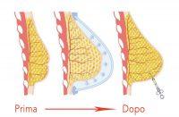 lipofilling sezione seno