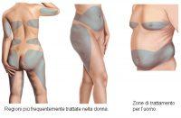 liposuzione zone uomo donna