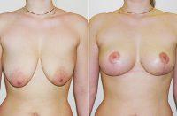 mastopessi e sollevamento seno