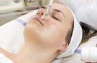 peeling volto medicina estetica presso studio anfosso grassi