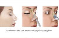 rinoplastica e rimozione del gibbo nasale